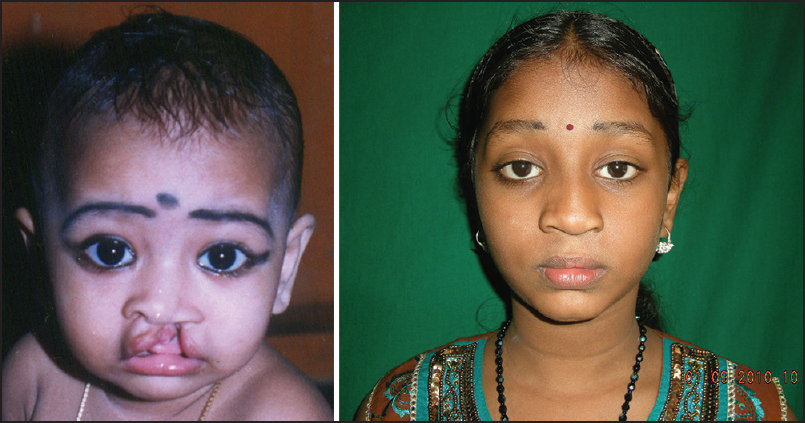 Figure 8: (a) Before primary lip repair. (b) Long-term result - 15 years after primary unilateral cleft lip correction