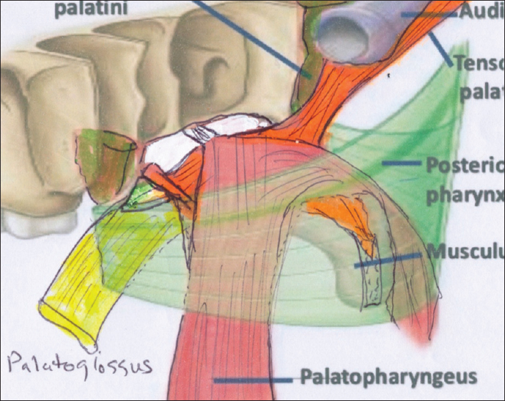 Pathologic anatomy of the soft palate, part 2: The soft ...