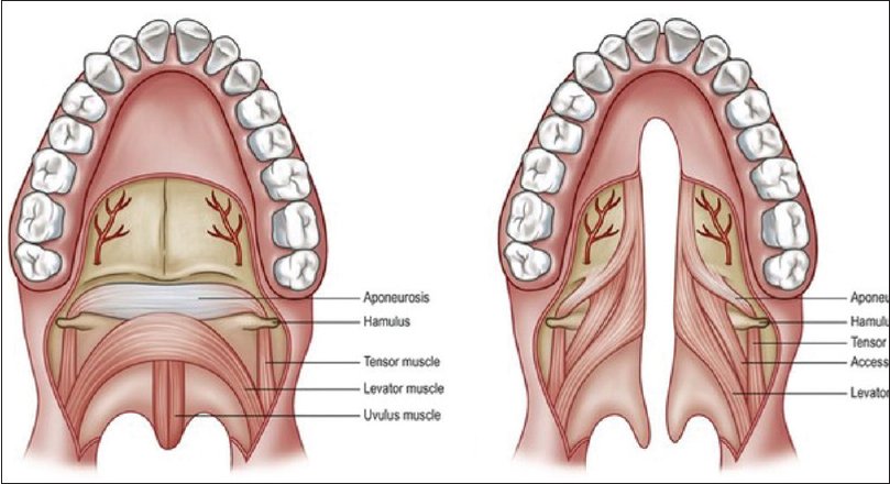 Pathologic anatomy of the soft palate, part 2: The soft tissue lever ...