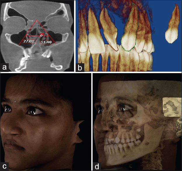 Figure 4: CBCT in the assessment of craniofacial structures in patients with CLP, (a) CBCT in assessment of nasal symmetry, (b) CBCT in assessment of tooth morphology, (c) 3D photos using CBCT, (d) integration of 3D photograph with 3D CBCT. CBCT: Cone-beam computed tomography, 3D: Three-dimensional