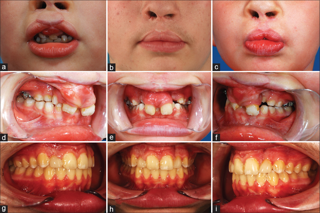 Reoperation of bilateral cleft lip deformity after primary